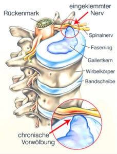 Bandscheibenvorfall osteopathie